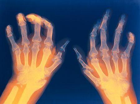 артрит на пальцах рук как лечить