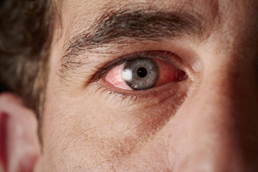 тромбоз ветви центральной вены сетчатки глаза