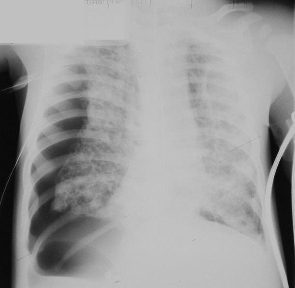гранулематозная болезнь