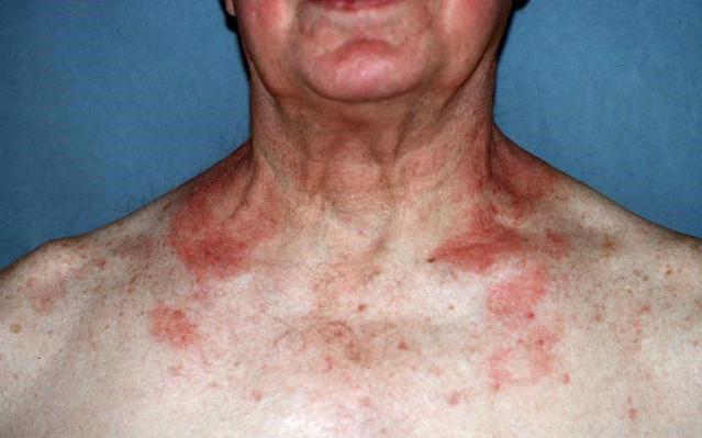 лечение атопического дерматита народными средстами у взрослых