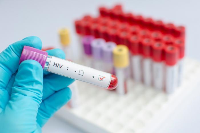 Чем отличается ВИЧ и СПИД?