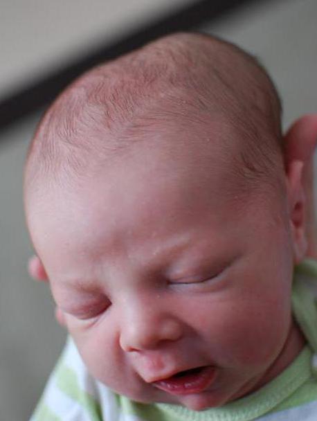 родовая травма на голове новорожденного
