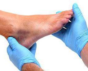 артроз артрит суставов стопы