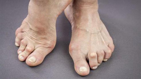 артрит суставов стопы чем лечить