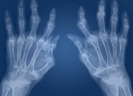 серонегативный ревматоидный артрит что это такое