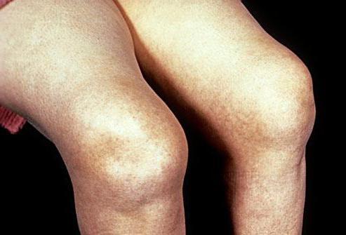 лечение артрит коленного сустава симптомы и лечение