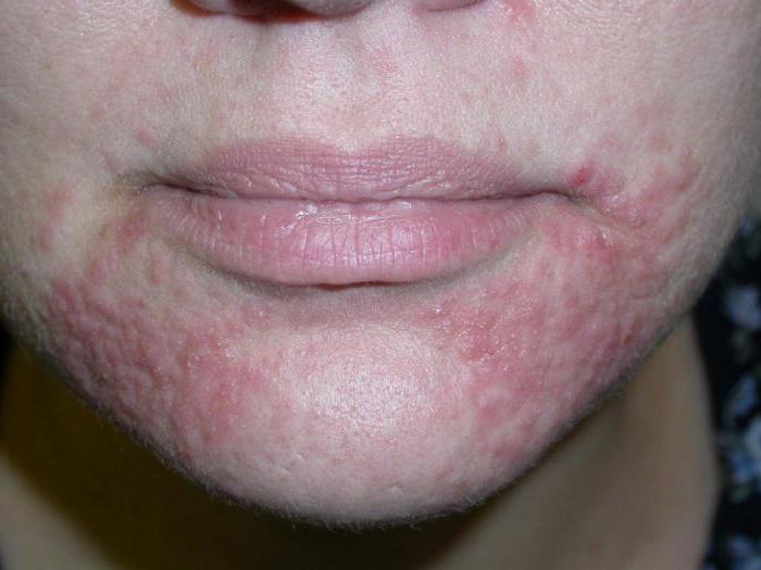 дерматит периоральный