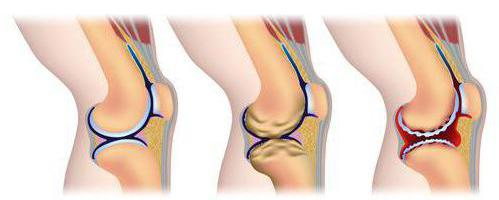 Ревматоидный артрит коленного сустава у детей