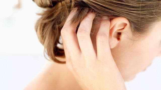 лечение себорейный дерматит