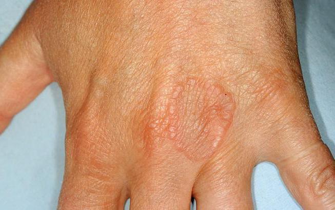 кольцевидная гранулема что это за заболевание