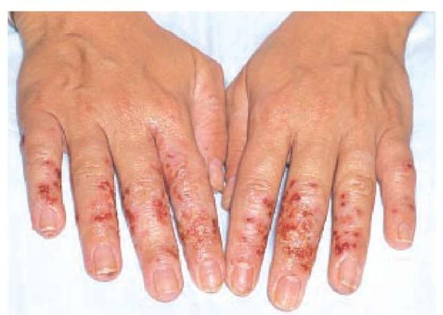 контактный дерматит симптомы и лечение фото