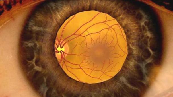 нгиопатия сетчатки обоих глаз гипертоническая