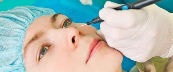 гематома после операции грыжи