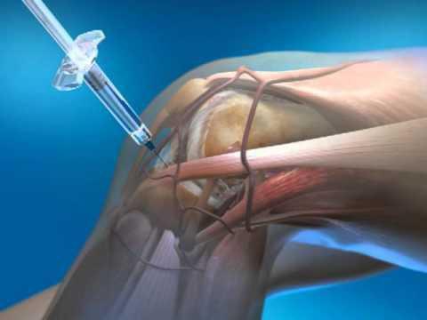 уколы при ревматоидном артрите