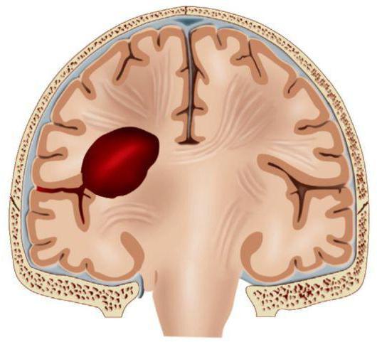 спонтанные внутримозговые гематомы