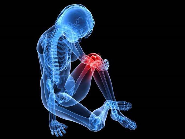 посттравматический артрит коленного сустава