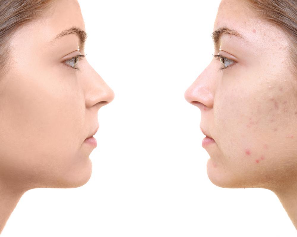до и после лечения шрамов от акне