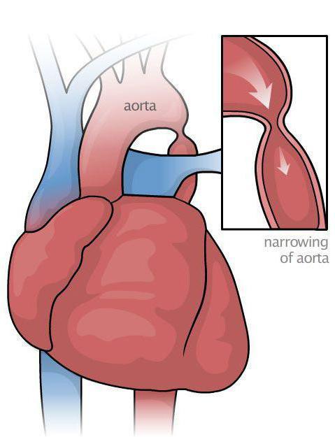 гемодинамические артериальные гипертензии лечение
