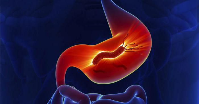 антибиотик при язве желудка от бактерии хеликобактер