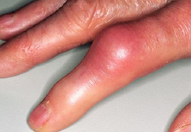 реактивный артрит этиология