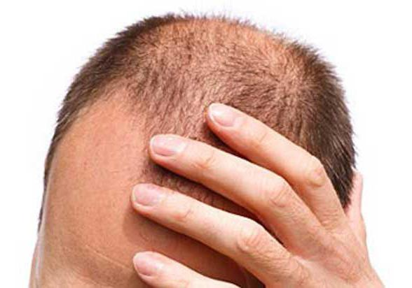 дерматит на голове лечение