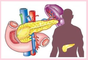 Обострение панкреатита
