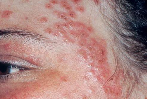 дерматит лечение на лице