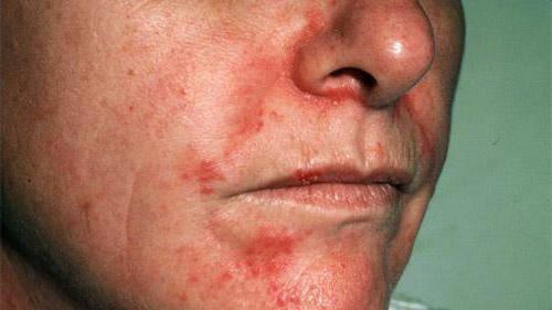 мазь от дерматита на лице