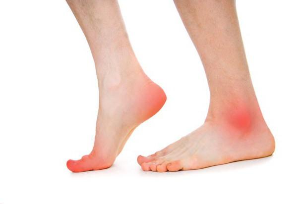 диагностика причины и лечение блуждающего артрита