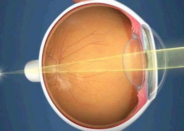 ангиопатия сетчатки обоих глаз гипертоническая причины