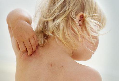 аллергический дерматит на шее