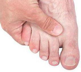 артрит суставов стопы