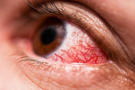 гипертоническая ангиопатия сетчатки обоих глаз