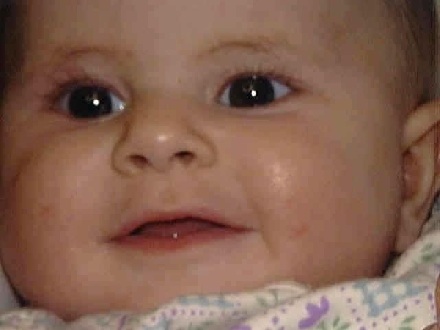 атопический дерматит у детей фото на лице