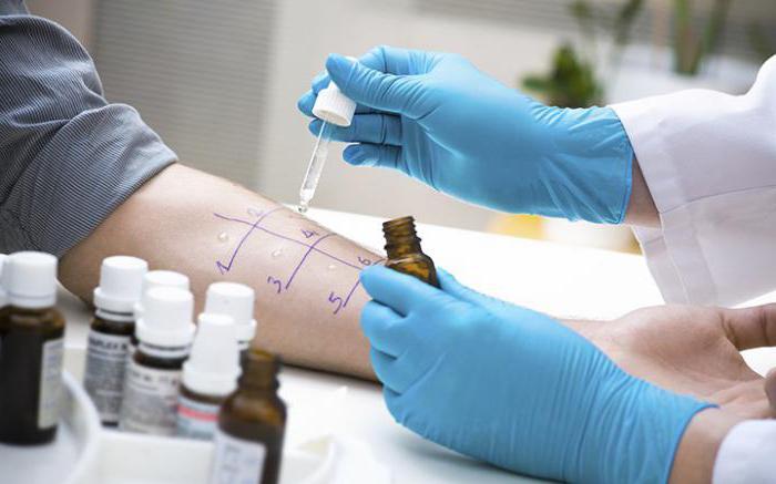 Заразен или нет себорейный дерматит