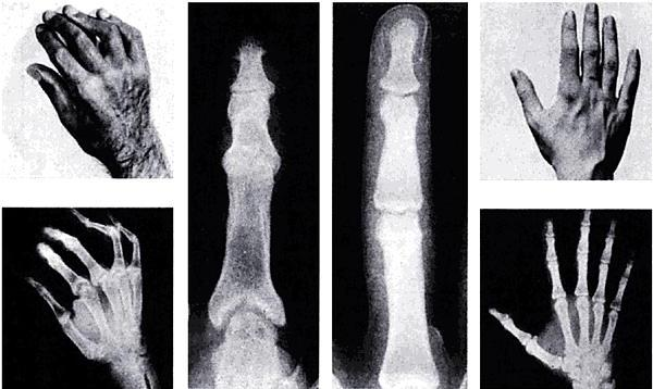 деформирующий артрит суставов