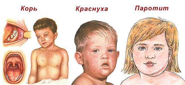 корь, краснуха и паротит у детей