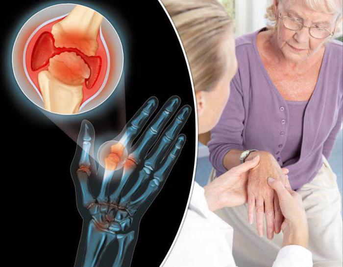 как лечить артрит и артроз ног