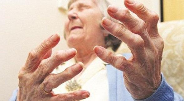 артрит какой врач лечит