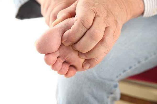 себорейный дерматит на ногах
