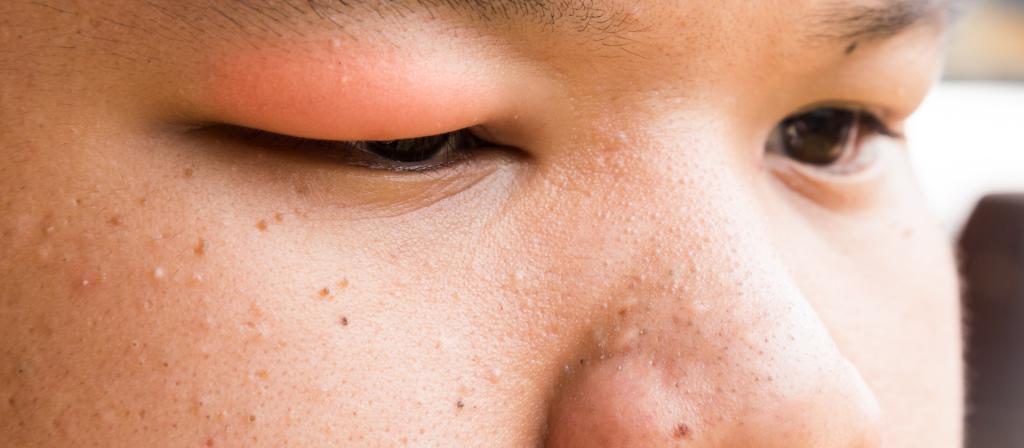 перелом глазницы степень тяжести