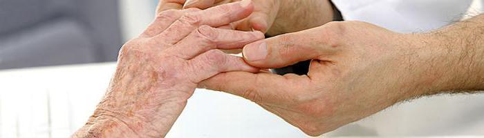 блуждающий артрит симптомы и лечение