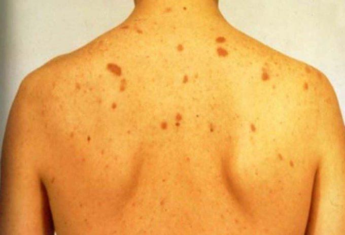 что такое острый гепатит в