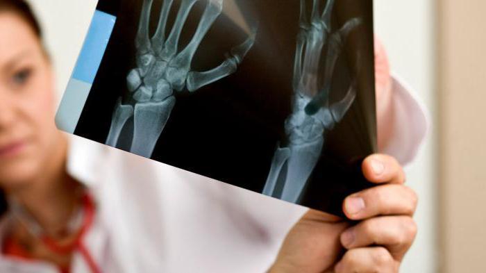 артрит реактивный как лечить