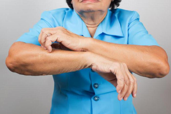 Кожный зуд у пожилых людей причины