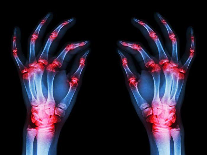 артрит ревматоидный инвалидность
