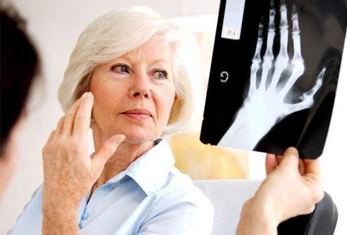 артрит артроз тазобедренного сустава симптомы