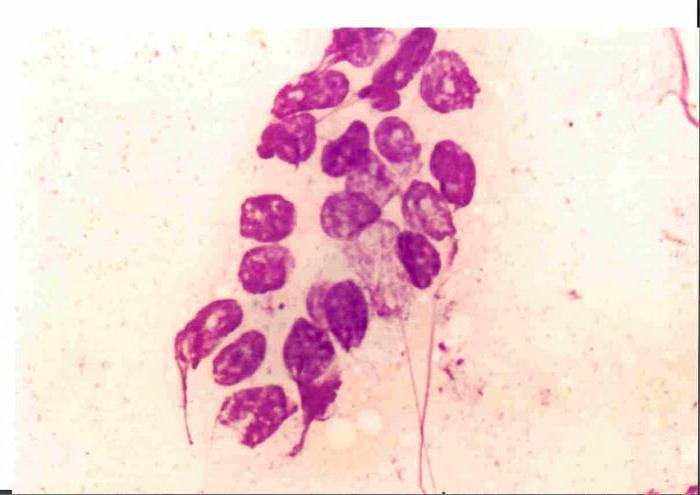 гематома после пункции молочной железы