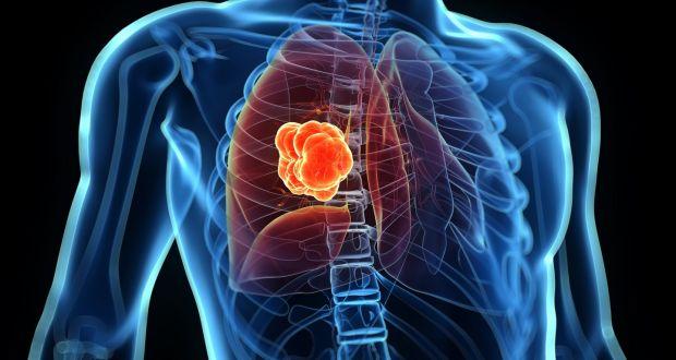Причина плеврита рак легких