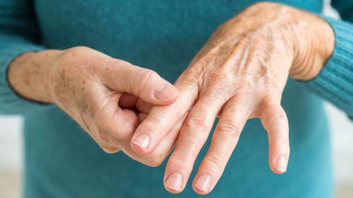 причины заболеваемости и факторы риска ревматоидного артрита